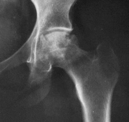 operación de cadera protesis